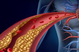 Aterosclerose: sintomas, causas e tratamento da doença
